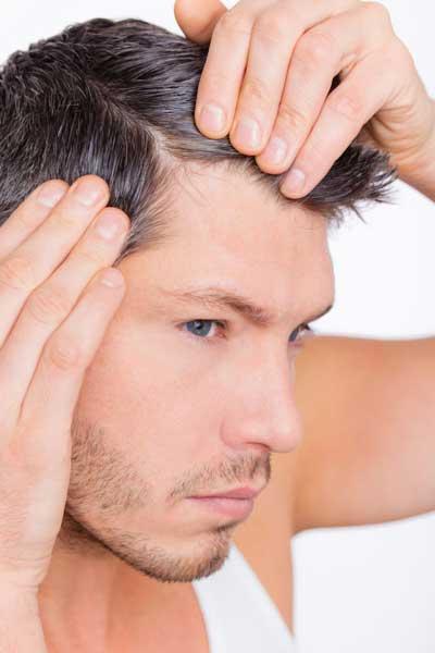 łysienie plackowate a androgenowe