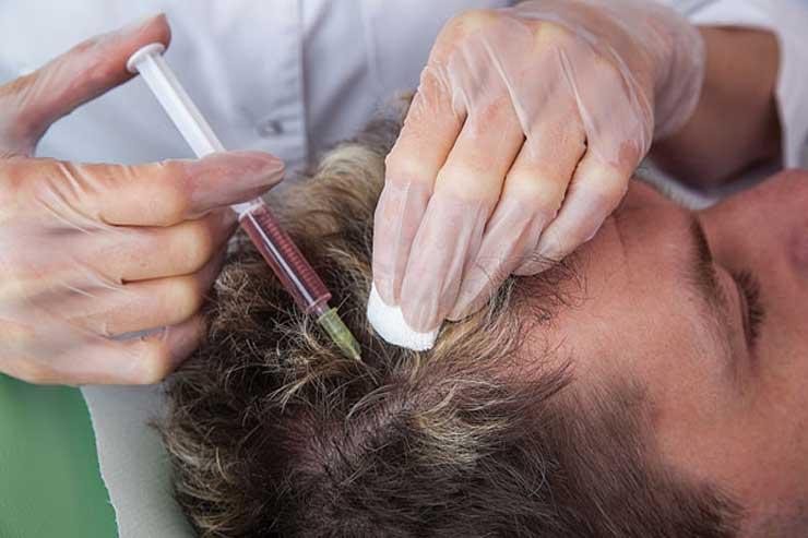komórki macierzyste na włosy