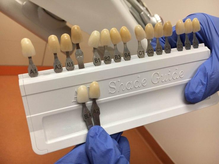 wybielanie beyond zęby
