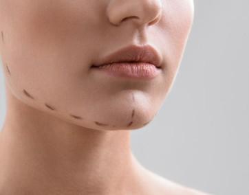 Czas pozbyć się nadmiaru skóry, która wpływa na owal twojej twarzy! / fot. Fotolia