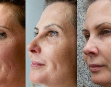 Perfect Derma Peel jest zaawansowanym, chemicznym peelingiem medycznym / fot. materiały prasowe