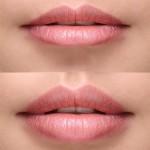 7 błędów powiększania ust