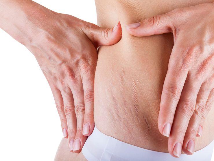 Kobieta, badająca rozstępy na brzuchu / fot. materiały prasowe