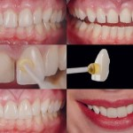 LECZENIE PROTETYCZNE: Uzupełnianie braków zębowych