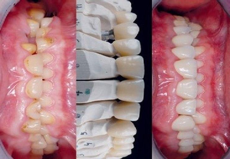 Pacjent ze starciem zębów / fot. materiały prasowe
