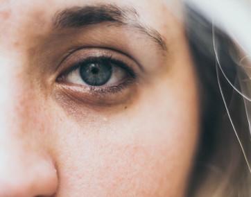 usuwanie cieni pod oczami