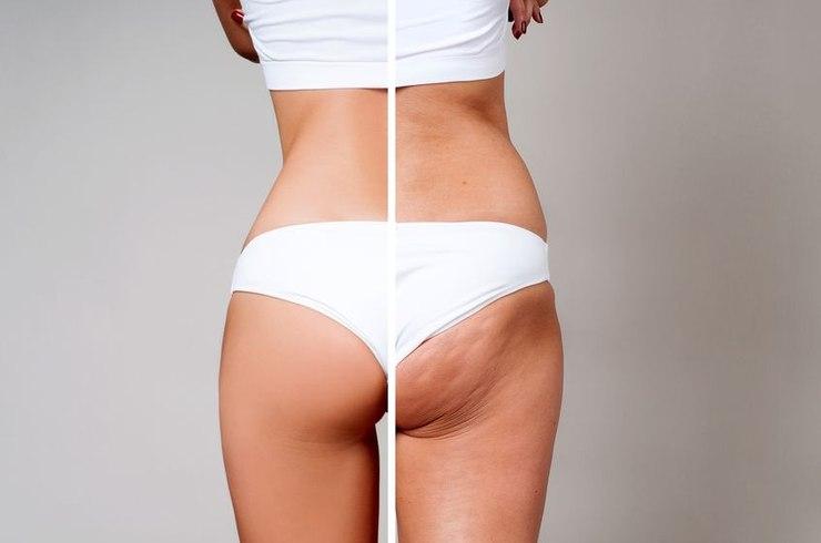 Masaż podciśnieniowy tkanek miękkich ciała to rewolucyjny zabieg, który doskonale redukuje nawet najbardziej zaawansowane stadia cellulitu / fot. materiały prasowe