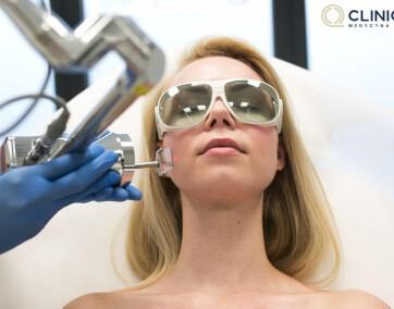 Laseroterapia/ fot. materiały prasowe